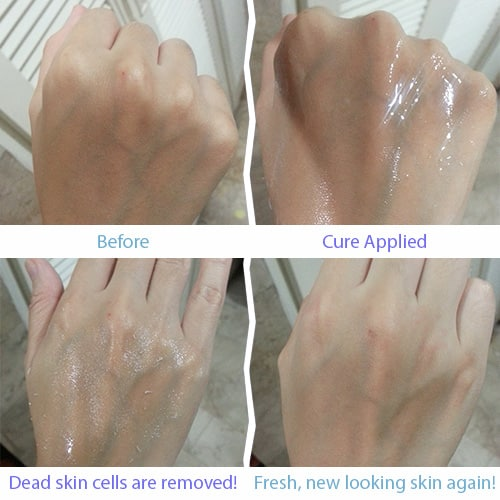 Cure-natural gel hieu qua nhu the nao